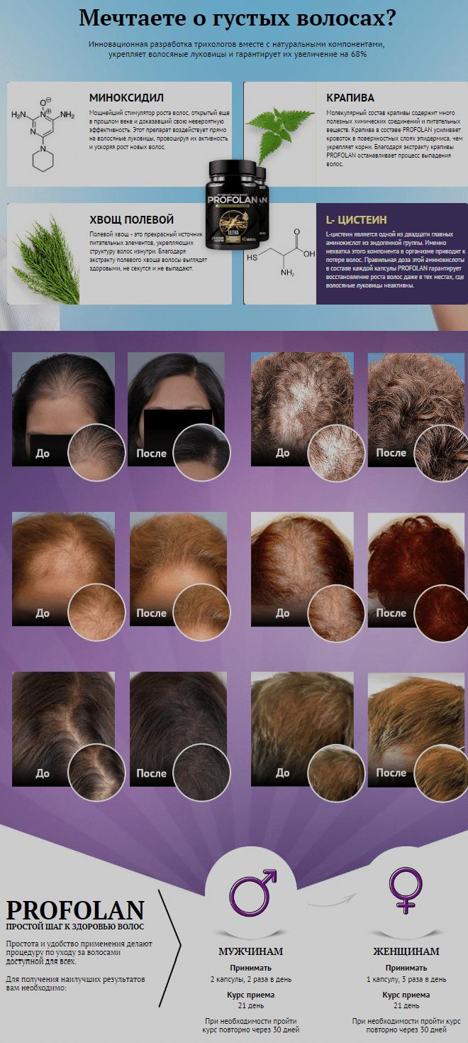 Профолан активатор роста волос купить